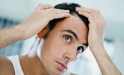 Η πρόωρη φαλάκρα σχετίζεται με καρδιοπάθεια;