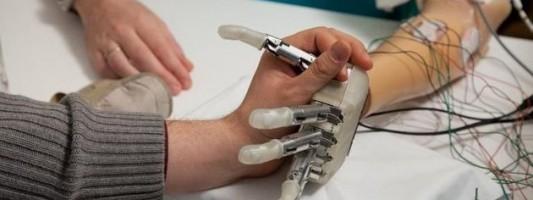Βιονικό χέρι ξαναδίνει σε ασθενή την αίσθηση της αφής