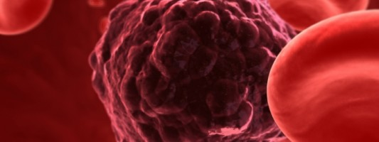 Επιτυχής νέα κυτταρική ανοσοθεραπεία σε  ασθενείς με προχωρημένη λευχαιμία