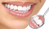 Πότε είναι ασφαλής η λεύκανση δοντιών;