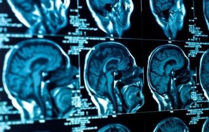 Η θεραπεία του καθρέφτη «ξυπνά» τους νευρώνες έπειτα από εγκεφαλικό