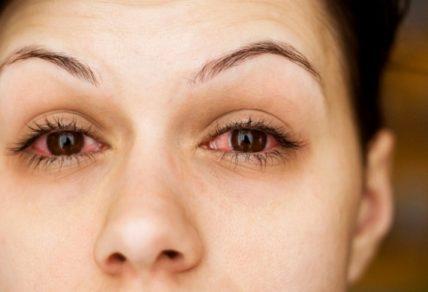 Που μπορεί να οφείλεται το κοκκίνισμα των ματιών