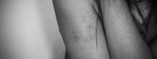 Ενδοοικογενειακή βία: Πάνω από 4 στις 10 γυναίκες δεν μιλούν