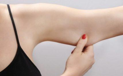 Πώς αντιμετωπίζεται η χαλάρωση στα μπράτσα;