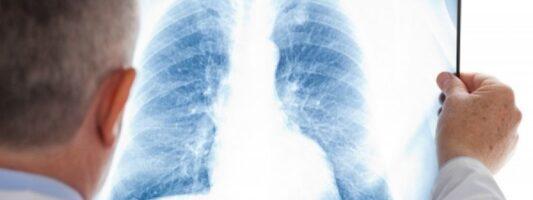 Νοέμβριος, μήνας Ενημέρωσης για τον καρκίνο του πνεύμονα: Η FairLife θα είναι #en_drasi